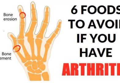 6 Foods to Avoid If You Have Arthritis
